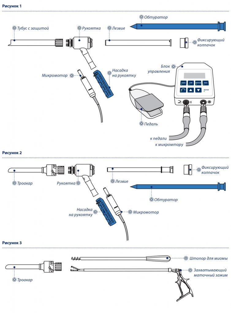 Комплектация морцеллятора TCM 3000 BL Nouvag